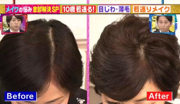 薄毛解消ヘアセット方法